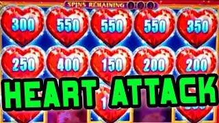 HEART ATTACK TIME • LOCK IT LINK DIAMONDS • 10 CENTS!